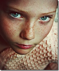 freckle1