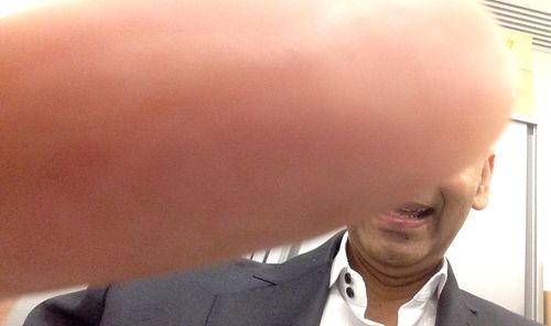 Nury thumb